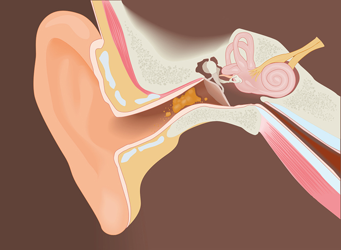 Anatomical view of ear wax in the ear canal